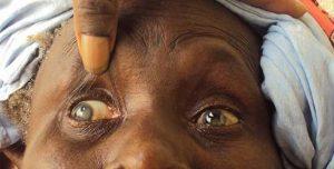 Santé: dépistage et opération gratuits de la cataracte à Natitingou